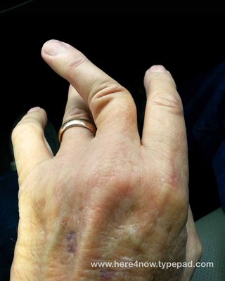 Dislocated Finger_05