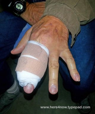 Dislocated Finger_08