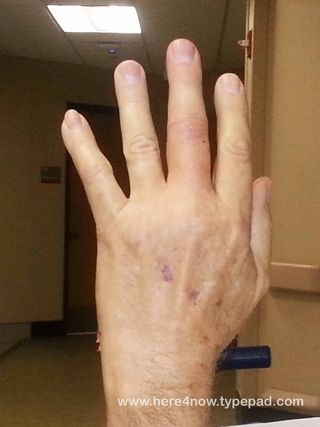 Dislocated Finger_07